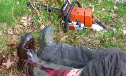 Belecsúszott a láncfűrész a lábába, majdnem elvérzett a férfi