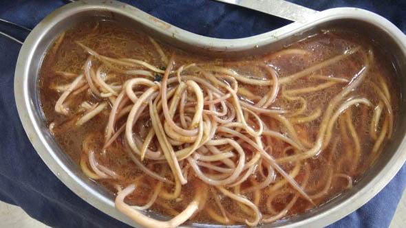 Újabb botrány a kerepesi kukacos leves miatt – valaki szándékosan férgeket tett a gyerekek ételébe?