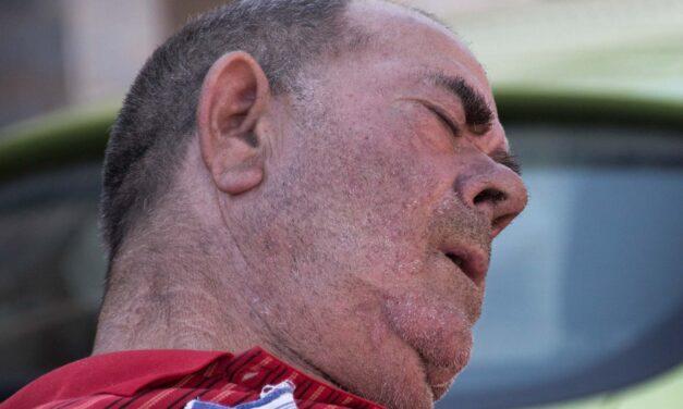 Úgy megütötte az utcán vizelő férfit, hogy eltörött a koponyája