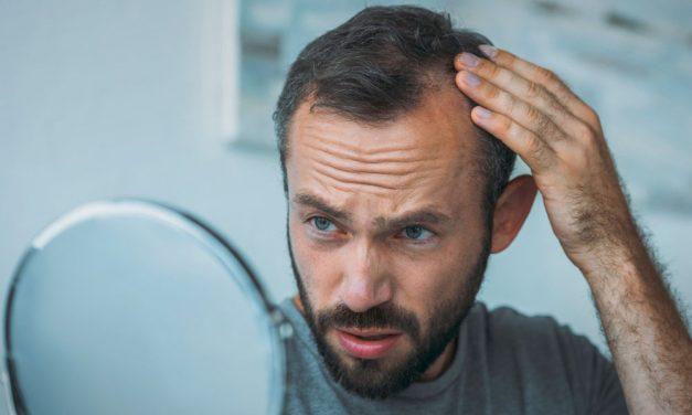 Melyik a legjobb megoldás a hajhullás ellen?